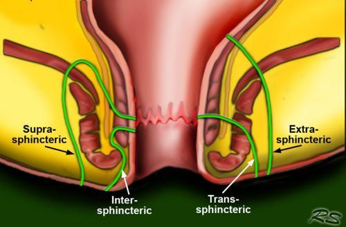 Anal fistula types