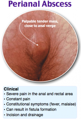 perianal abscess 1